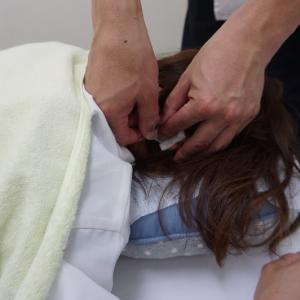 10.3  薄毛改善の鍼灸治療も好評です