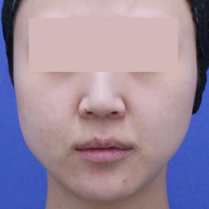 小顔になれる組み合わせ★バッカルファット+ボトックス注射(エラ)