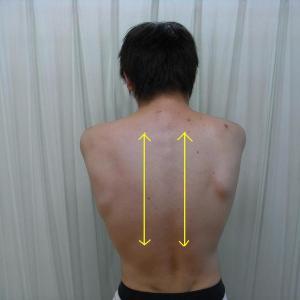 背中の痛み・こりの原因とは?