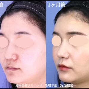 ♪お鼻のコンプレックスを解消します!ベテラン須田医師の鼻整形♪