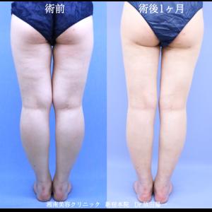 ♪脚全体をしっかり吸引☆ベテラン須田医師の脂肪吸引♪