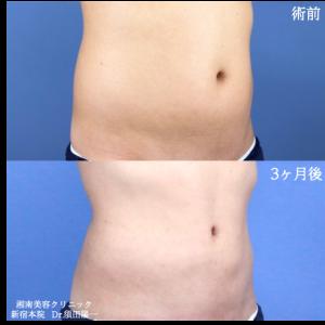 ♪男性にも人気です!!須田医師の脂肪吸引♪