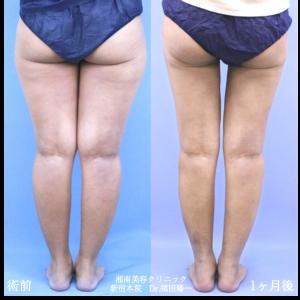 ♪むっちり脚からスラっと美脚に変身★須田医師の脂肪吸引♪