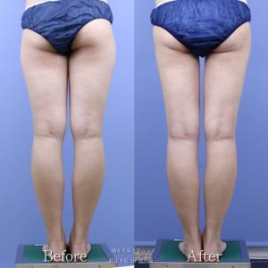 ♪ここまで細く仕上げられるのは須田医師だけ!ベテラン医師の美脚デザイン脂肪吸引♪