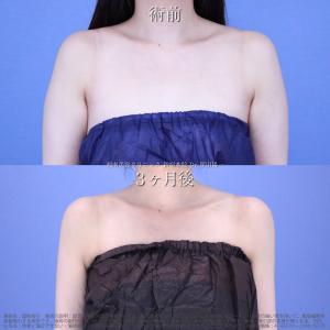 ♪ダイエットでも取れない脂肪は脂肪吸引でしっかり吸引します!須田医師の美デザイン脂肪吸引♪