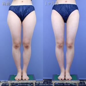 ♪【症例紹介】念願のスッキリ細い太ももに仕上げました★モニター様も大満足の美脚デザイン脂肪吸引♪