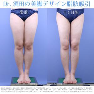 ♪【症例紹介】脚長・美脚に見える計算され尽くしたデザイン脂肪吸引です★アキーセル脂肪吸引♪