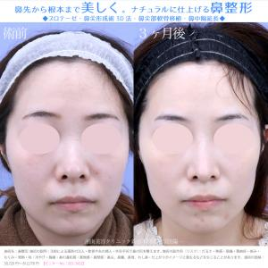 ♪【横顔美人になれる鼻整形】ダウンタイムも最小限★団子鼻を解消しスッと綺麗なお鼻に仕上げました♪