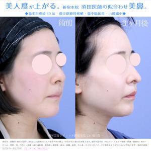 ♪【鼻の穴の見え方改善】お顔にぴったり合ったオーダーメイド鼻整形★不要な施術は薦めません!!!♪