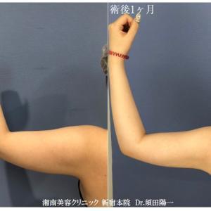 ♪特別モニター様募集中★気になる二の腕を脂肪吸引でスッキリさせましょう!♪