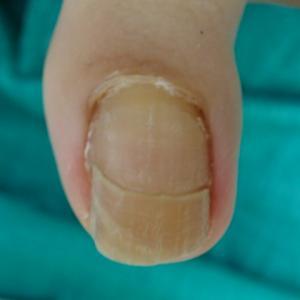 あきらめた爪がキレイになりました