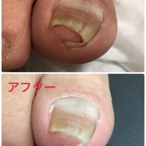 巻き爪の爪切り