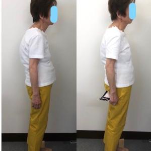 ご高齢でも、症状も改善!身長も姿勢も改善!