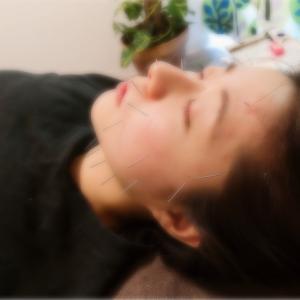 美容鍼灸の効果報告★視野が広い!目がパッチリ!顔の歪みも整いました!左右の顔に関する小話も♪
