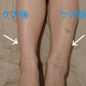 超音波でフットケア症例&14年目突入のわたし(^^♪