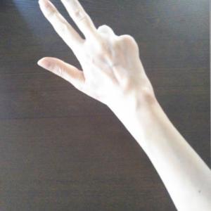 右手の手術をしました