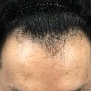 SMC大阪院の驚異の発毛(317)~生え際をすこーし下げたい。~ARTAS植毛(大阪バージョン)