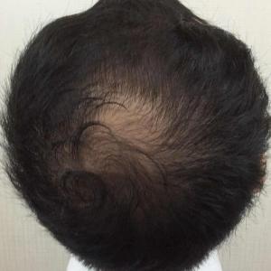 SMC大阪院の驚異の発毛(322)~30代男性、周囲の指摘から頭頂部を改善~スマートメソ