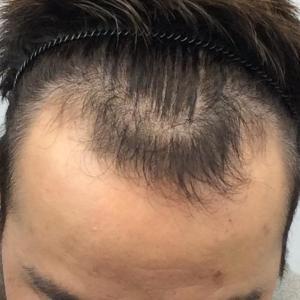SMC大阪院の驚異の発毛(318)~20代男性のM字を自然に確実に治す~ARTAS植毛大阪式