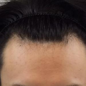 SMC大阪院の驚異の発毛(319)~M字とこめかみを植毛し、額を引き締める~ARTAS植毛