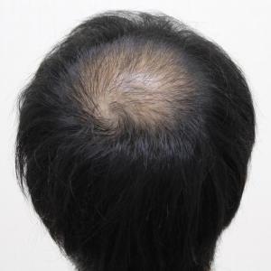 SMC大阪院の驚異の発毛(325)~頭頂部の急激な薄毛の進行~入念な診察が必要です。~30代男性