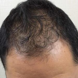 SMC大阪院の驚異の発毛(324)~広範囲の薄毛~おシャレもできなくなった~治療で劇的改善~