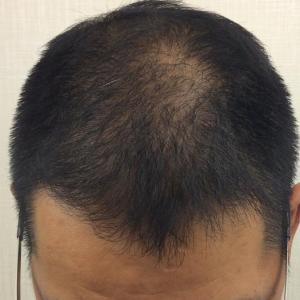 SMC大阪院の驚異の発毛(326)~スマートメソってすごい!!~6型を治した!!~43歳男性