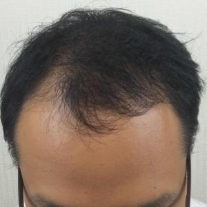 SMC大阪院の驚異の発毛(328)~前頭部の変化重要です!!~前髪は大切にしましょう!~30代
