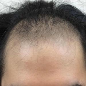 SMC大阪院の驚異の発毛(329)~髪が薄いと老けて見える→改善すれば人生変わる!!~スマメソ