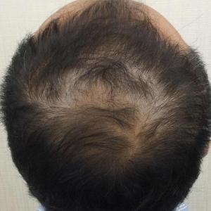 SMC大阪院の驚異の発毛(330)~治療前の地肌の色も治療効果の予想に必要です。~スマメソ~
