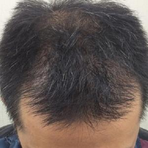 SMC大阪院の驚異の発毛(331)~もともと剛毛の方はよくなる!!~40代の薄毛治療