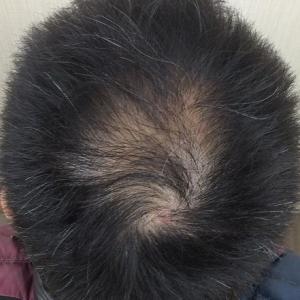 SMC大阪院の驚異の発毛(332)~ハミルトン4型の進行した頭頂部の薄毛~30代の劇的改善