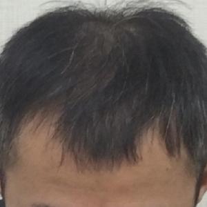 SMC大阪院の驚異の発毛(333)~諦めてはダメです!!~きちんと診断します~40代男性 5型