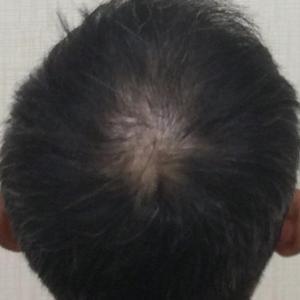 SMC大阪院の驚異の発毛(334)~20代男性の頭頂部!!~若い人の方が良くなる!!あきらめない