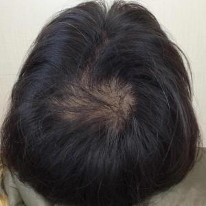 SMC大阪院の驚異の発毛(335)~頭頂部にはスマートメソ!!~早ければ確実です!!~30代男性