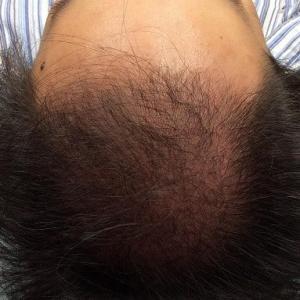 SMC大阪院の驚異の発毛(336)~劇的改善した30代男性の広範囲AGA症例~