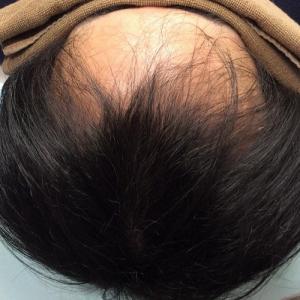 SMC大阪院の驚異の発毛(337)~前頭部のボリュームダウンならスマートメソで治せます~