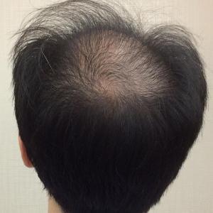 SMC大阪院の驚異の発毛(338)~超劇的改善!!頭頂部、完璧に治りました!!30代男性