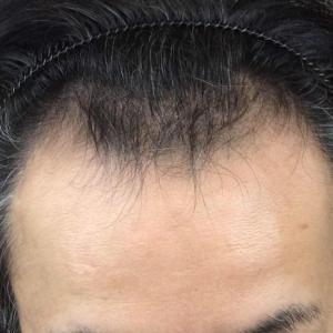 SMC大阪院の驚異の発毛(339)~M字も浅くなりました。改善です。~40代男性~スマートメソ