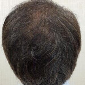 SMC大阪院の驚異の発毛(340)~薄毛はいくつになっても治したいもの!~これからもおしゃれを!