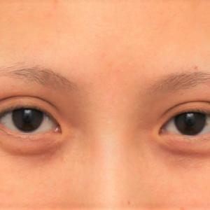 目頭切開+目尻切開で目の横幅を広げた症例の腫れが引いていく経過画像です。