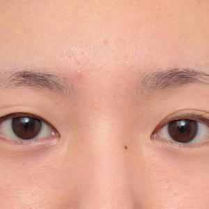 片目のみ二重まぶた全切開法を行い、反対側に合わせてほぼ左右対称にした症例の経過画像です。