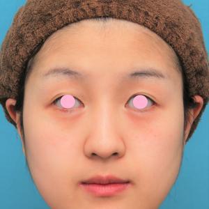 バッカルファット除去手術を行った20代女性の症例写真です。