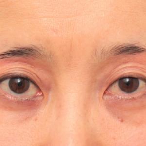 目の上の窪みにヒアルロン酸注射した50代女性の症例の経過画像です。