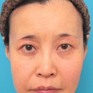 ミディアムフェイスリフトでたるみのリフトアップをした50代女性症例の経過画像です。