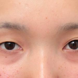 埋没法2針固定で自然な末広型二重を作った20代女性症例の経過画像です。