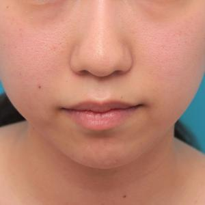 先日アップした、顎のシリコンプロテーゼの入れ替え手術をして更に顎を出した症例写真の解説です。