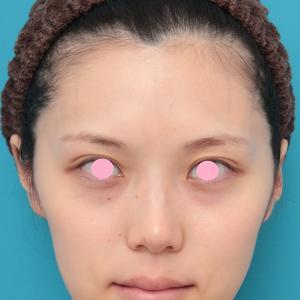 先日アップした、チークヒアルと顎のヒアルロン酸注射を同時に行った20代女性の症例写真の解説です。