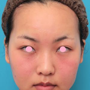 顔専用脂肪溶解注射メソシェイプフェイスで小顔になった20代女性の経過画像です。