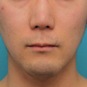 リップリフト(人中短縮手術)を行った30代男性の経過画像です。